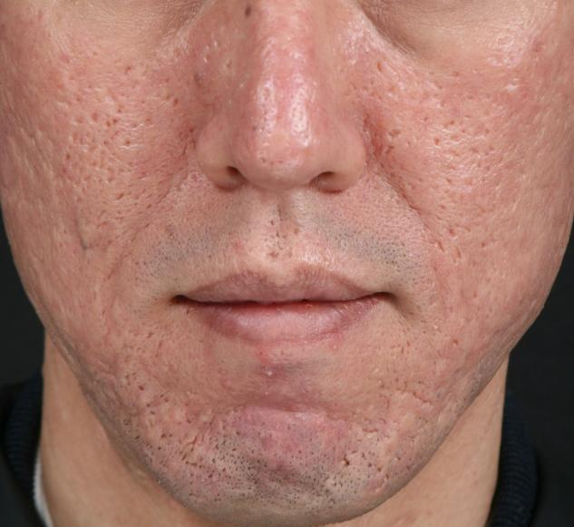 cure acne scars at aesthetic clinic in kl