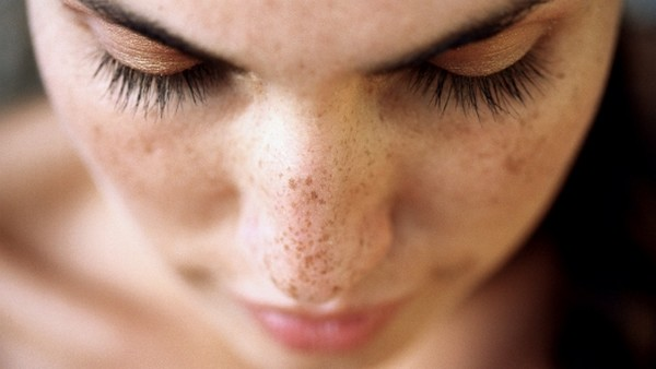 cure dark spots at aesthetic clinic in kl